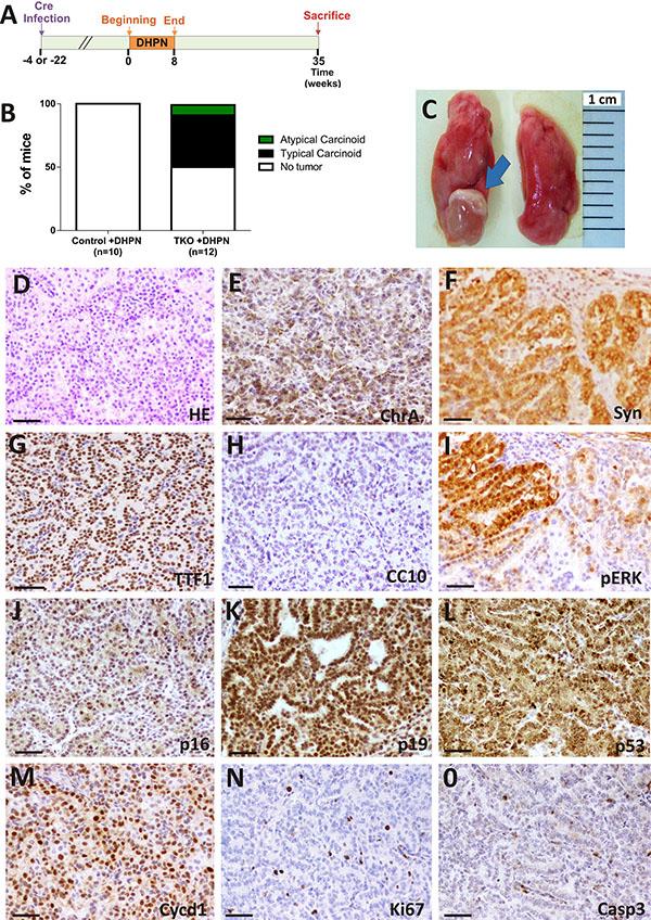 DHPN carcinogenesis in TKO mice.