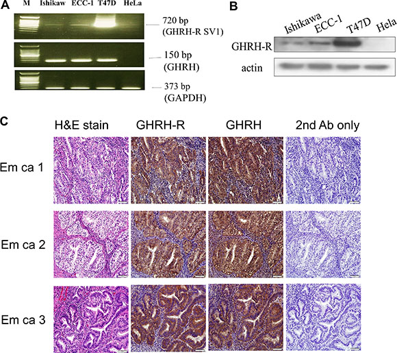 Expression of GHRH receptor (GHRH-R) and GHRH in human endometrial cancer.