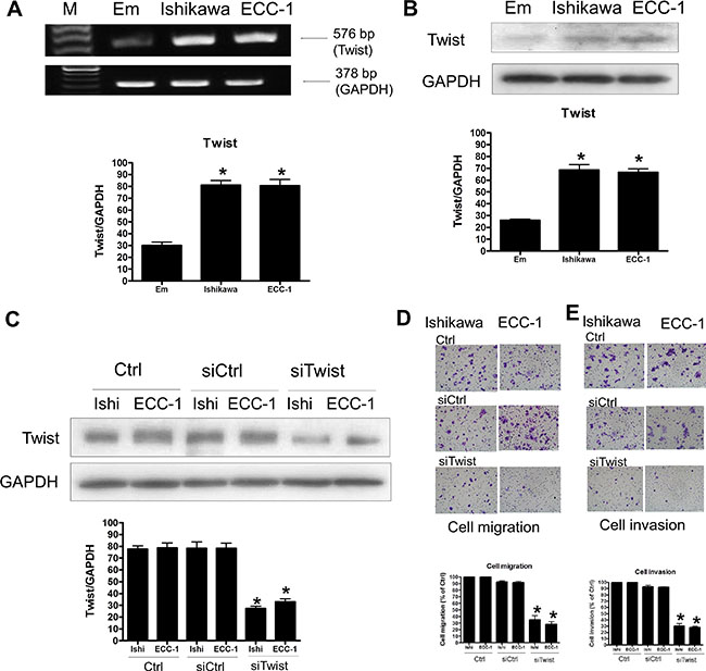 The effects of Twist signaling in endometrial cancer cells.
