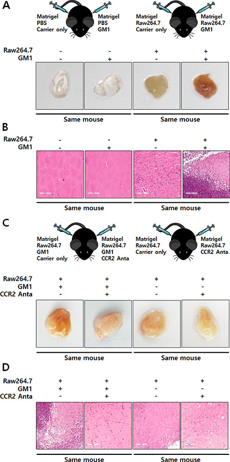 GM1-stimulated macrophages induce in vivo angiogenesis through functional activation of CCR2.