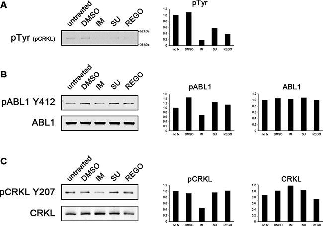 Imatinib inhibits ABL1 kinase activity more effectively than sunitinib or regorafenib.