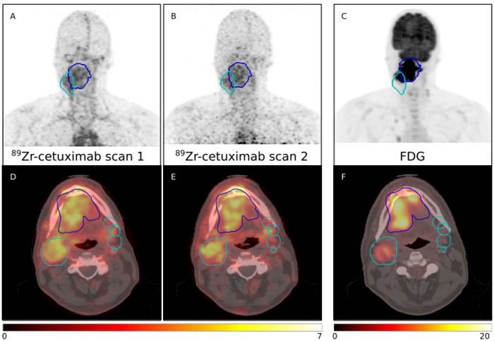 PET maximum intensity projections (MIP) (top row) and fused PET/CT images showing PET uptake in SUV (bottom row) of the two