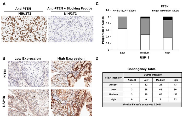 PTEN and USP18 expression profiles are associated in human lung cancers.