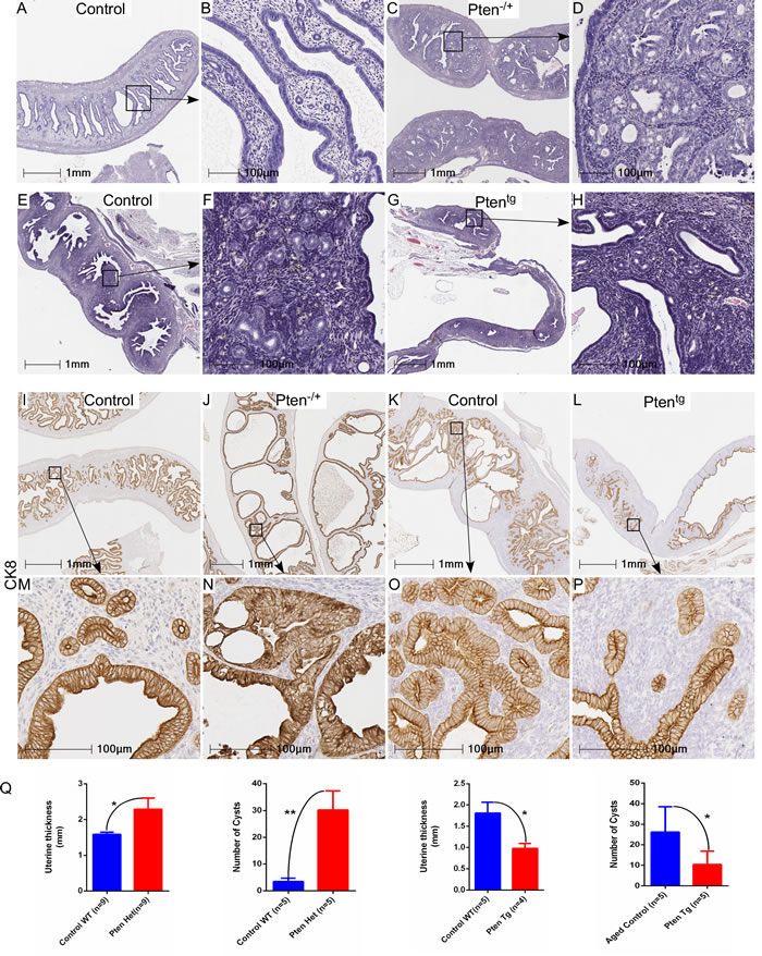 Genetic alterations in Pten, a negative regulator of mTOR signaling, contribute to the hyperplastic growth of uterus.