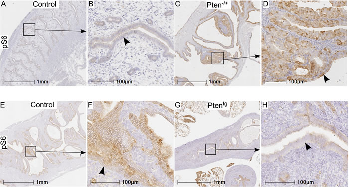 pS6 protein expression in uteri of Pten