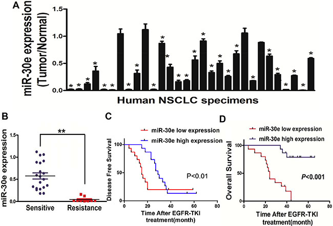 MiR-30e expression is markedlyreduced in lung cancer.