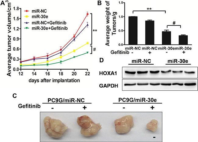 MiR-30e enhances chemosensitivitytogefitinib in a mouse model.