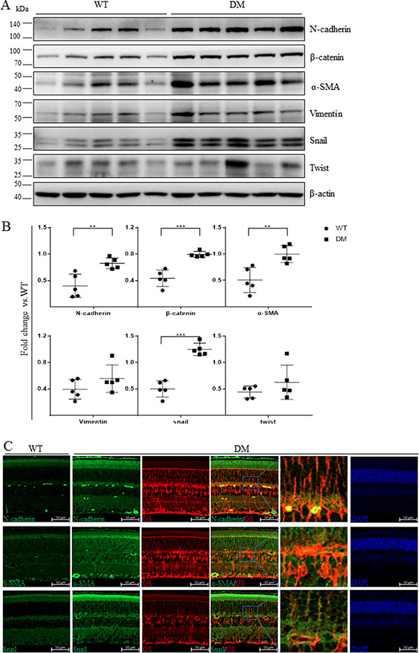 Mesenchymal marker expression was increased in the retinas of STZ-diabetic mice.