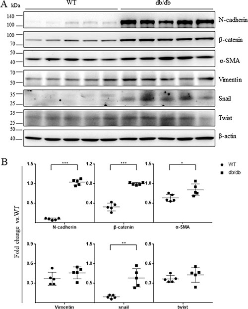 Mesenchymal marker expression was increased in the retinas of db/db mice.