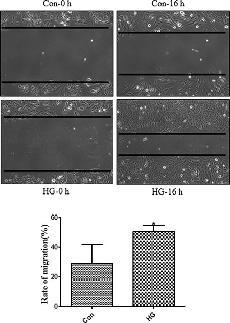 High glucose treatment promoted migration in Müller cells.