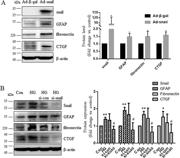 Snail increased CTGF and fibronectin expression in Müller cells.