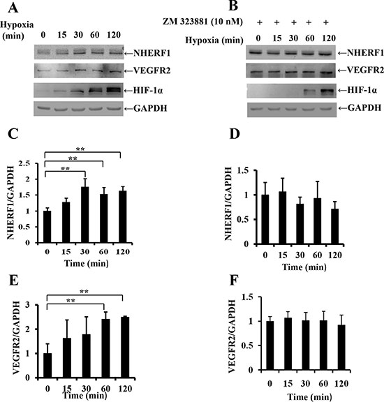 Exposure to hypoxia increased NHERF1 expression depending on the activation of VEGFR2 signaling pathway.