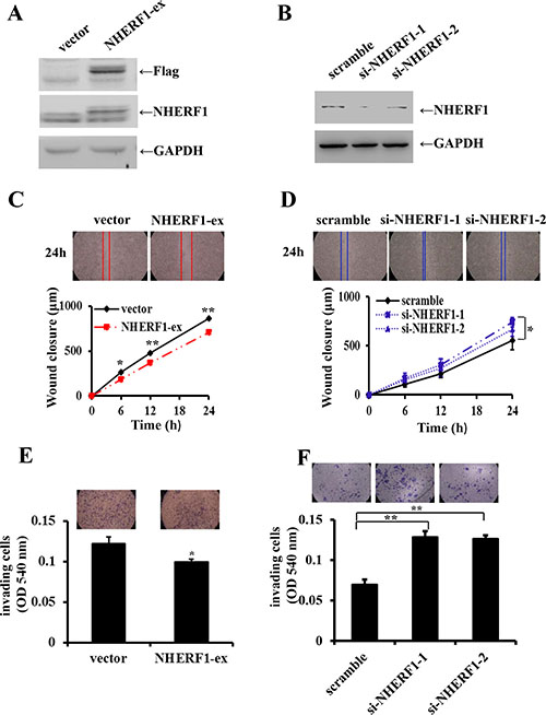Effects of NHERF1 expression on the migration and invasion of RKO cells.