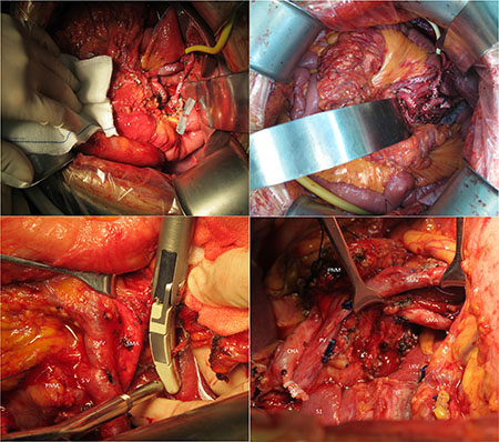 These pictures show the range of our surgery to get a integrate SMA margin.