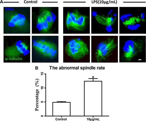 Lipopolysaccharide exposure impaired spindle structure.
