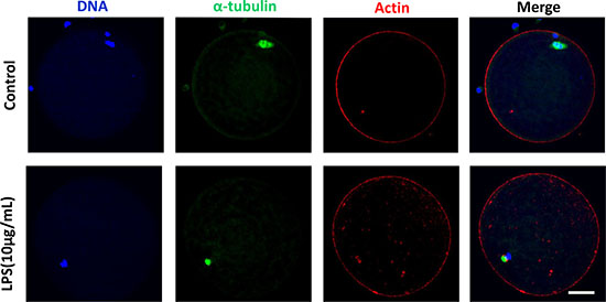 Actin assembly was not disrupted following lipopolysaccharide treatment.
