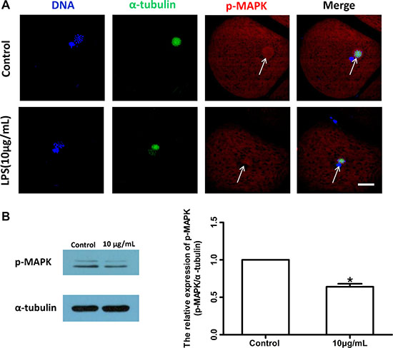 Lipopolysaccharide exposure changed the localization and protein level of p-MAPK in bovine oocytes.