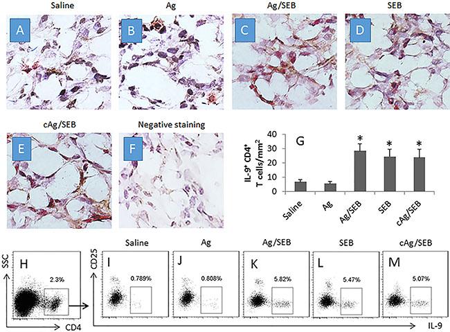 Counts of IL-9+ CD4+ T cells in glioma tissue.