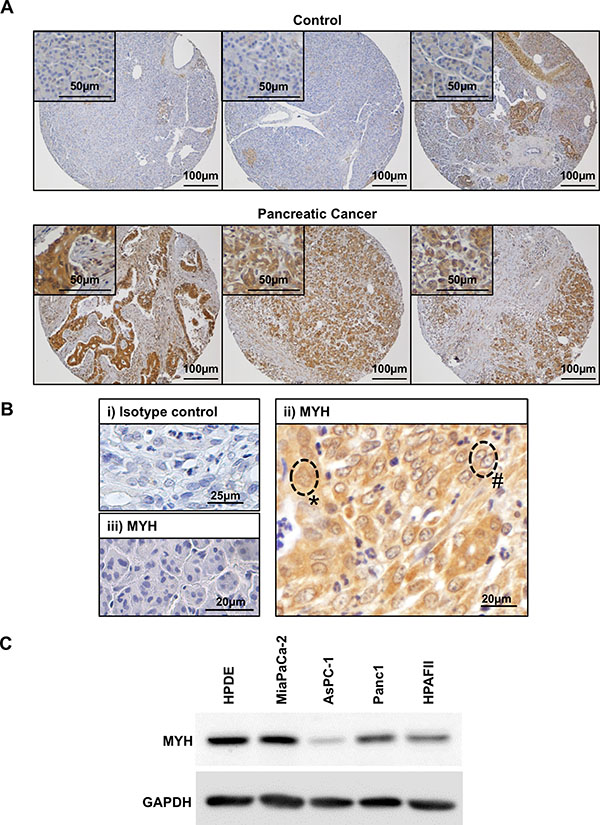 Expression of MYH in human pancreatic adenocarcinoma tissue and cell lines.