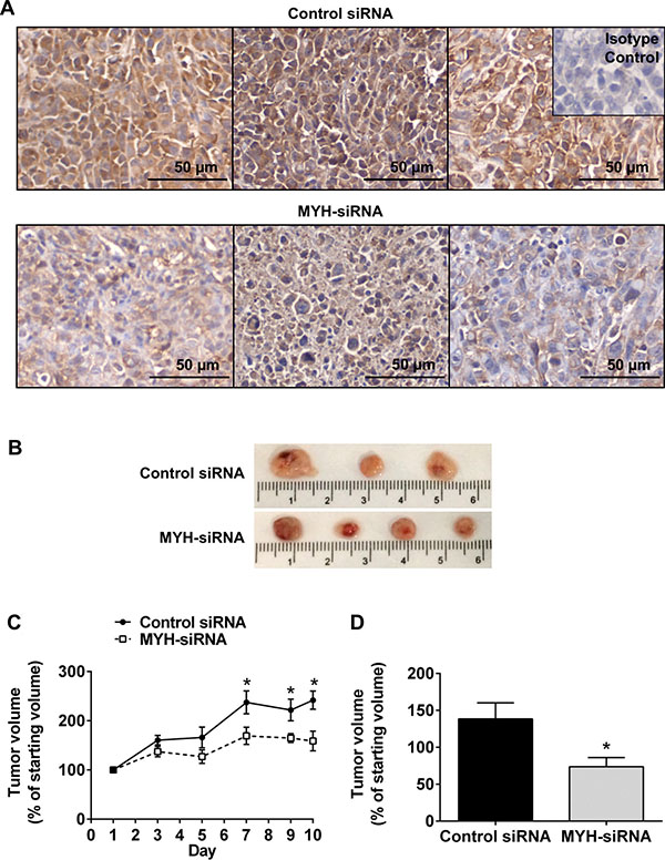 Silencing MYH in pancreatic cancer cells reduces subcutaneous tumor growth.