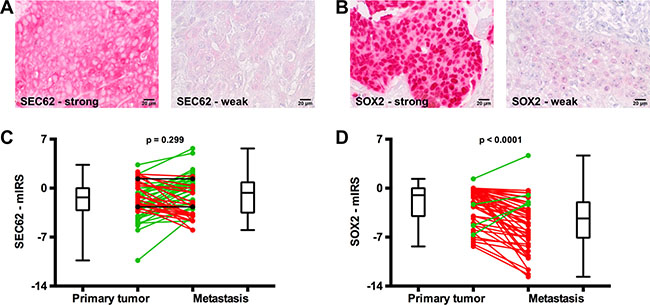 SEC62 and SOX2 expression in the primary tumor and lymph node metastases of HNSCC patients.