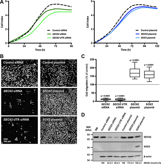 Effect of SEC62 and SOX2 expression on the proliferation and migration of UM-SCC1 cells.