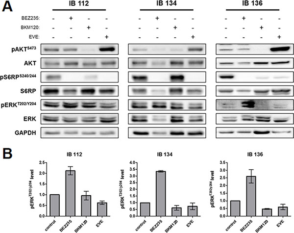 Downstream kinase inhibition by BEZ235, BKM120 and everolimus (EVE) in LMS cell lines.