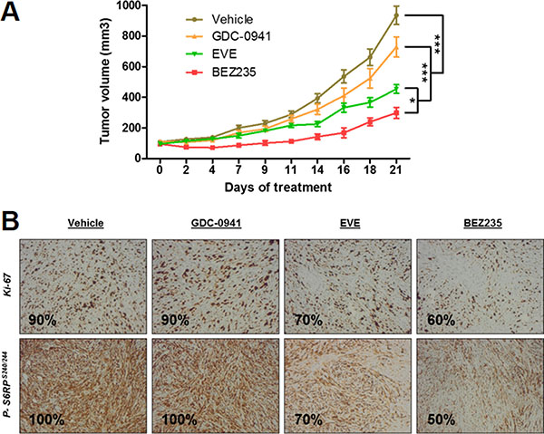 Anti-tumor effect of BEZ235, BKM120 and everolimus (EVE) on human IB136 cell xenografts in Ragγ2C–/– mice.
