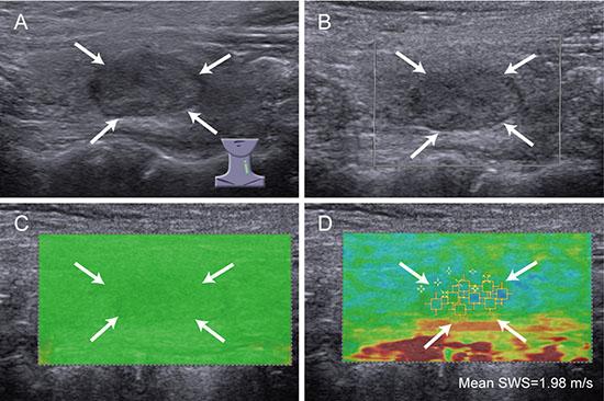 Images of high QM in benign thyroid nodule.