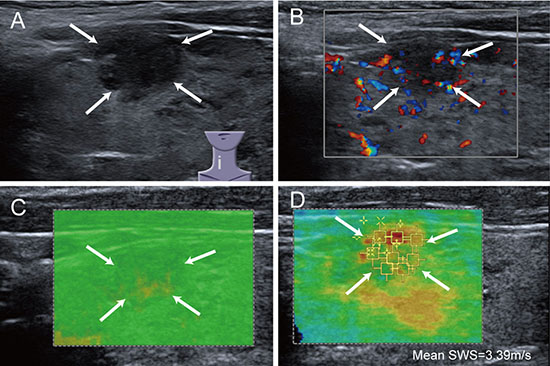 Images of low QM in malignant thyroid nodule.