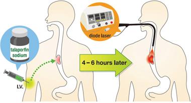 Illustration of PDT procedure.