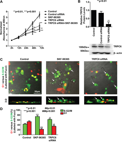 Either pharmacological block of TRPC6 with SKF-96365 or knockdown of TRPC6 expression with TRPC6 siRNA suppresses human non-small cell lung cancer A549 cell proliferation and causes A549 cells arrested at the S-G2/M phase.