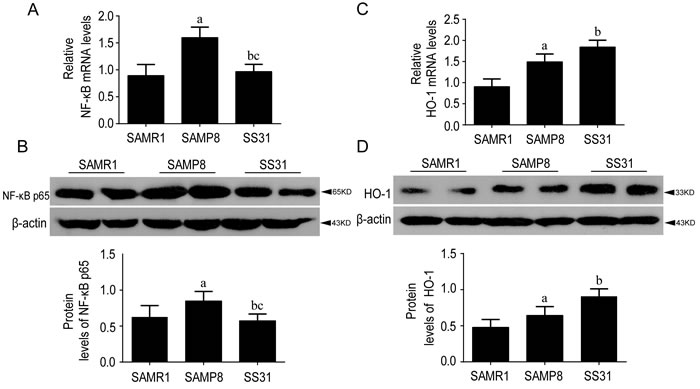 The levels of NF-κB p65 and HO-1 were different between SAMR1 and SAMP8, While SS31 exerted anti-inflammatory effects.