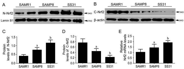 Nrf2-ARE pathway was activated in SAMP8 relative to SAMR1 and exerted anti-oxidant effects after administration of SS31.