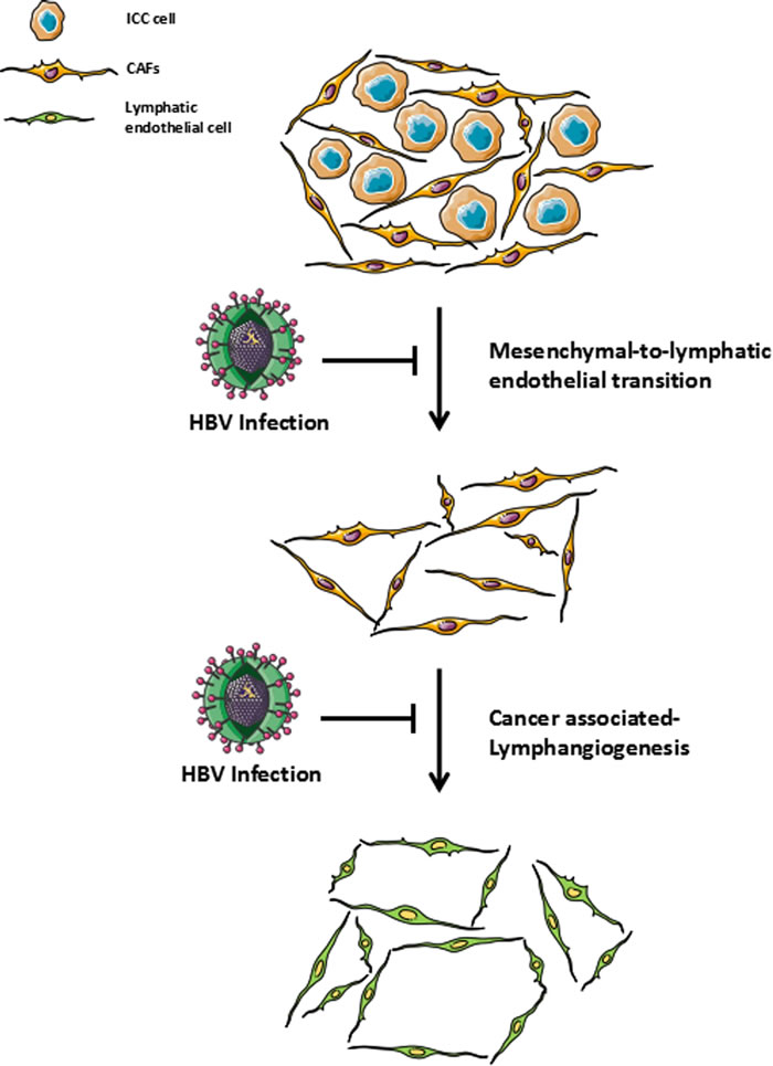 Role of HBV infection in cancer-associated lymphangiogenesis / HBV infection could be involved in the suppression of cancer-associated fibroblasts to adopt a lymphatic endothelial morphology and function (mesenchymal-to-lymphatic endothelial transition) which has resulted in the low extent of cancer-associated lymphangiogenesis and led to a relatively low incidence of lymph node metastasis in HBV-associated ICC.