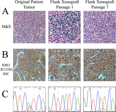 Characteristic histological and genetic features of the IDH1 (R132H) anaplastic astrocytoma model.