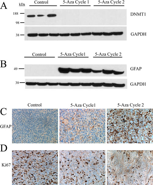 Treatment with 5-azacytidine induces differentiation and reduces the proliferative index in an