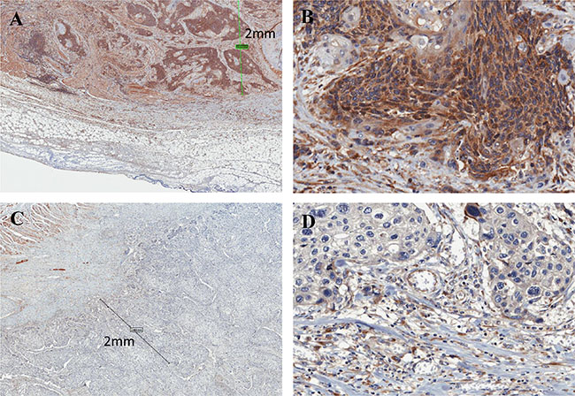 Immunohistochemistry of FLNC in ESCC tissues.