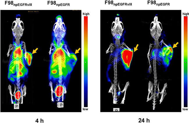 Representative small animal SPECT/CT images of F98npEGFRvIII and F98npEGFR tumor-bearing mice at 4 and 24 h p.i. 125I-4G1 uptake in F98npEGFRvIII tumors was significantly higher than that in F98npEGFR tumors at each time point.