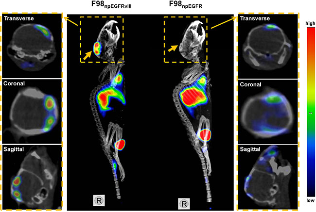 Representative small animal SPECT/CT images of F98npEGFRvIII and F98npEGFR intracranial tumor models at 24 h p.i. 125I-4G1 uptake in F98npEGFRvIII tumors was significantly higher than that in F98npEGFR tumors
