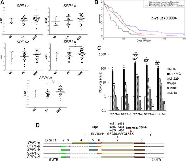 The expression pattern of SPP1 splicing variants in glioma clinical samples and human glioma cell lines.