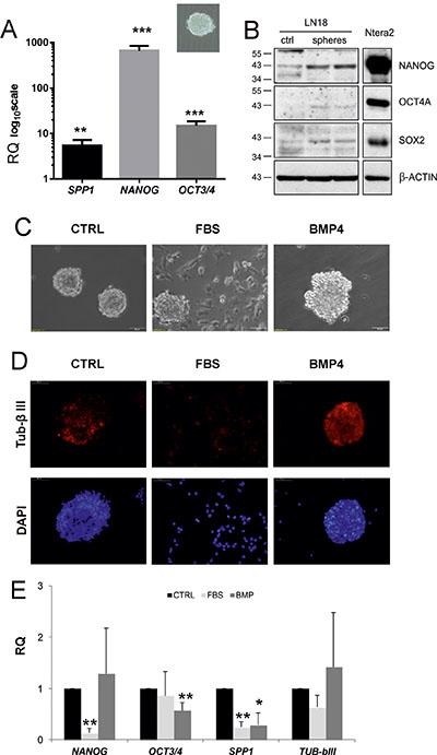 SPP1 expression is up-regulated in glioma spheres and reduced after forced differentiation.