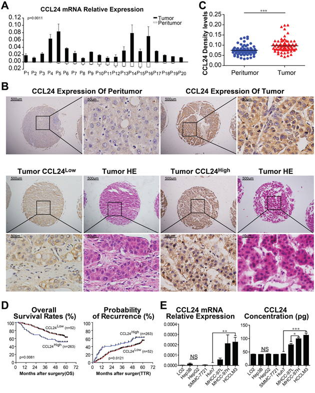 CCL24 expression in HCC tissues and HCC cell lines.