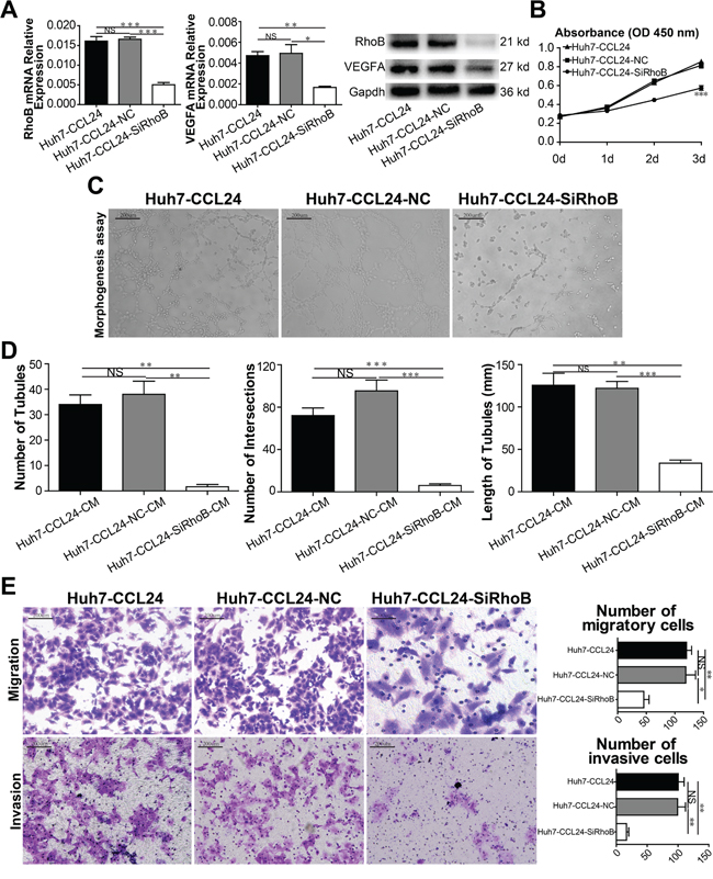 Characterization of siRhoB expression, proliferation, migration, and invasion ability in HCC cells and angiogenesis in HUVECs.