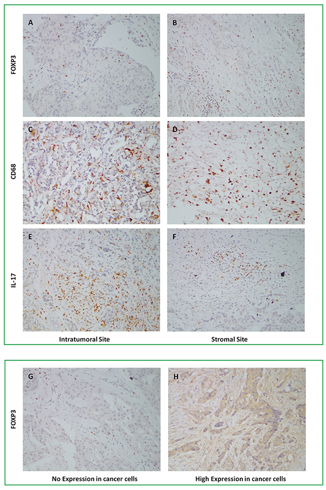 Infiltration of FOXP3+ Tregs, CD68+ Mφ, IL-17+ Th17 in intratumoral and stromal sites, and Foxp3 expression in cancer cells by IHC staining, 1×200.