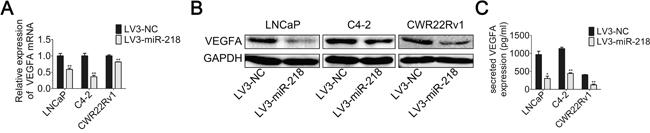 miR-218 inhibits VEGFA expression.