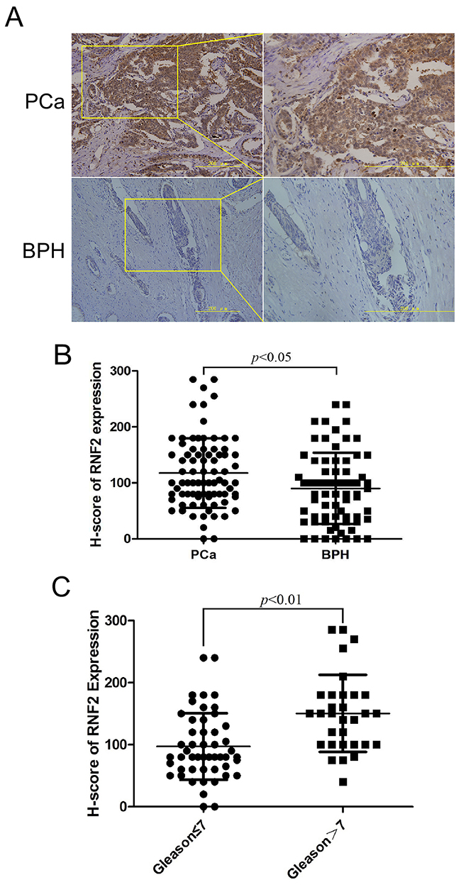 PCa tumor tissues showed higher RNF2 expression than BPH tissues.