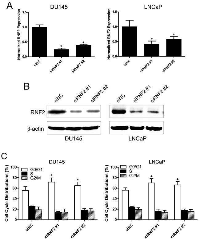 Knockdown of RNF2 resulted in cell cycle arrest and apoptosis in DU145 and LNCaP cells.