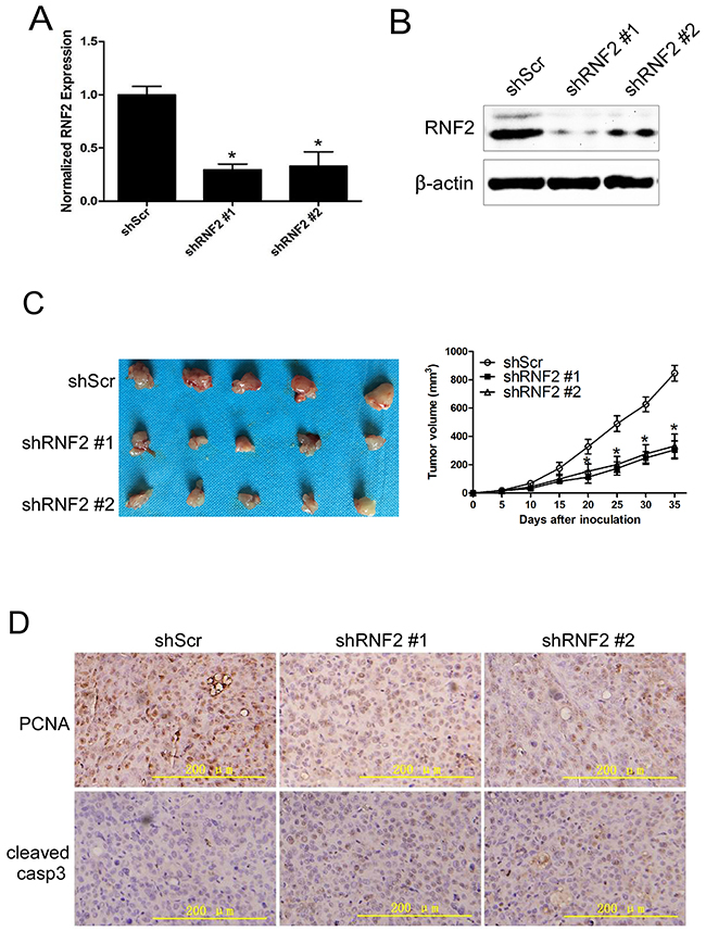 Knockdown of RNF2 inhibited the growth of PCa xenograft in nude mice.