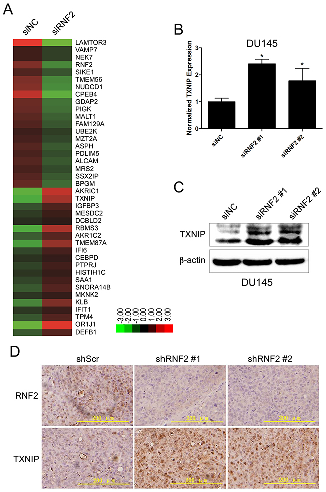 TXNIP expression was increased in RNF2 knockdown DU145 cells.